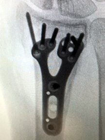 x-ray of a hand showing a Fracture fixed with a volar locking plate, enabling early motion