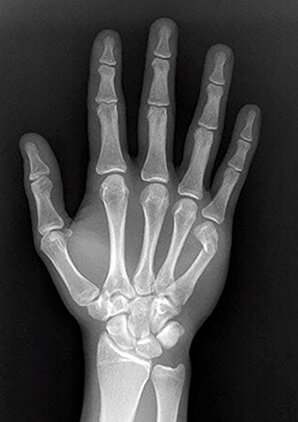 x-ray of a hand showing a Fractured neck of the little finger metacarpal