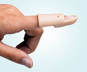 photograph of a hand showing a Mallet splint to treat a mallet injury of the index finger