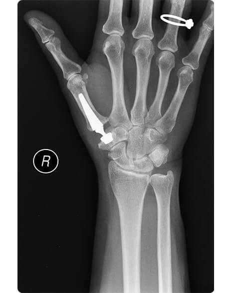 x-ray image showing cmc thumb replacement in-situ