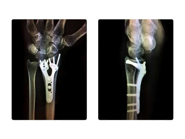Raj Bhatia specialises in the diagnosis and treatment of all hand and wrist conditions and here is an x-ray of a wrist fracture plate fixation