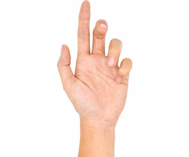 photograph of a person's hand with the index finger pointing upwards and the remaining fingers curling back half-closed towards the palm illustrating the treatment Raj Bhatia offers to common hand and wrist pain